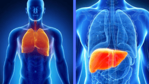 Steps to Fight Liver and Lung Cancer