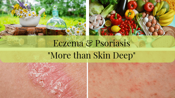 Eczema & Psoriasis is More than Skin Deep