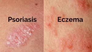 Psoriasis and Eczema Self-help and Natural Treatments