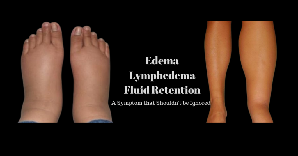 Edema Lymphedema Fluid Retention - A Symptom that Shouldn't be Ignored