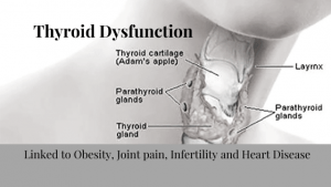 Thyroid Dysfunction the Truth about your Thyroid