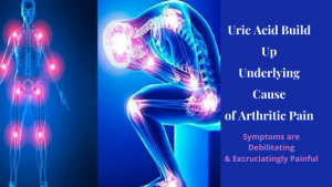 Uric Acid Build Up Underlying Cause of Arthritic Pain  Symptoms are Debilitating & Excruciatingly Painful