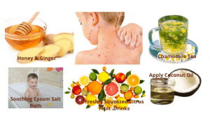 6 Key Steps to Naturally Treat Chicken Pox & Improve Immune Response