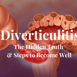 Diverticulitis The Hidden Truth and Steps to Become Well