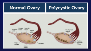 Causes of PCOS: Polycystic Ovarian Syndrome - Steps to Treating it Naturally!