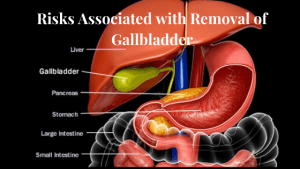 Risks Associated with Removal of Gallbladder