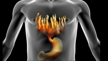 Acid Reflux Symptoms, Diet and Natural remedies