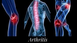 Self Help Treatment for Rheumatoid & Osteo arthritis