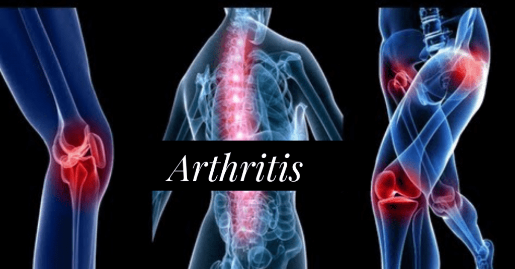 Arthritis Prevention & Safe Treatments