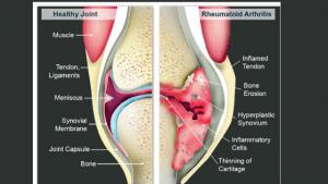 Healthy-Joint-compared-to-Rheumatoid-Arthritis