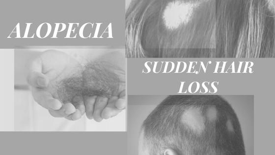 Alopecia-Sudden-Hair-Loss