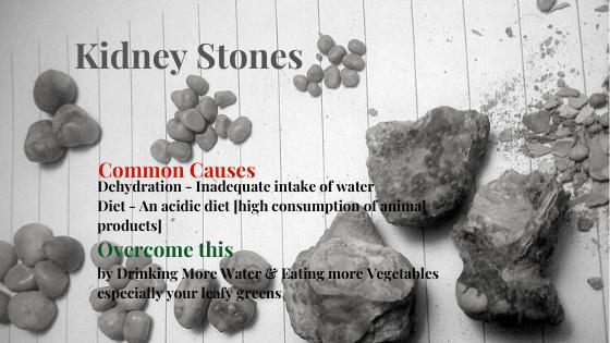 Kidney Stones Common Causes Dehydration & Acidic Body